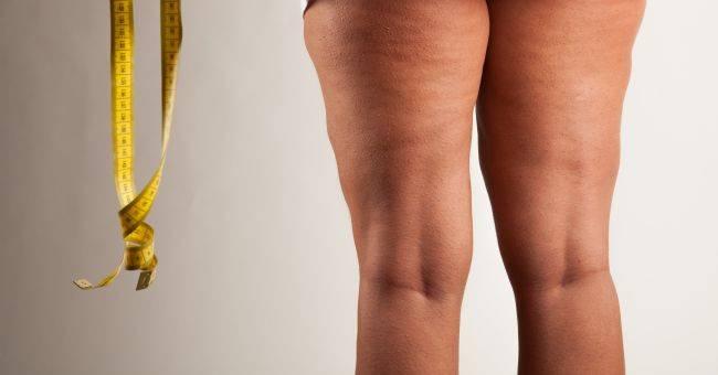 Dieta anticellulite: come ridurre l'effetto buccia d'arancia